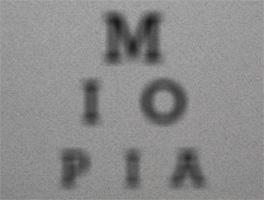 destacado-miopia